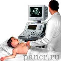 reaktivniy-pankreatit